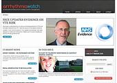 Arrhythmia Watch Digital>
